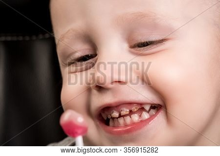 Kid Patient Open Mouth Showing Caries Teeth Decay. Dental Medicine And Healthcare. Caries From An Ea