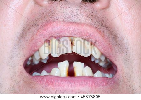 Rotten and crooked teeth of men. Crooked teeth can be sign of running periodontal.