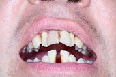 Rotten and crooked teeth of men. Crooked teeth can be sign of running periodontal. poster