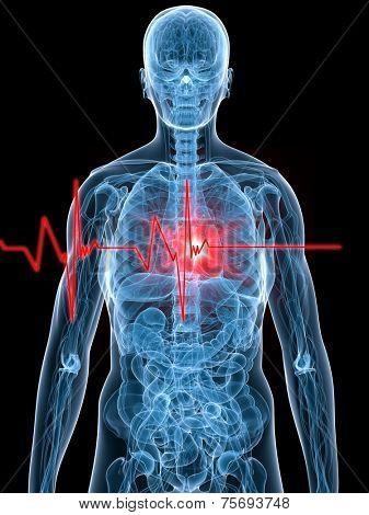 heartbeat/heartattack illustration