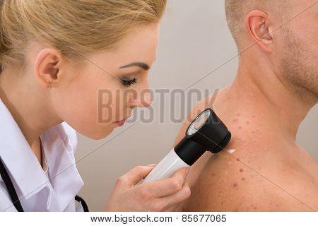 Doctor Examining Pigmented Skin