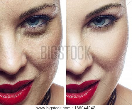 Woman face before and after cosmetic procedure. Facial cosmetology healthcare or   plastic surgery concept.