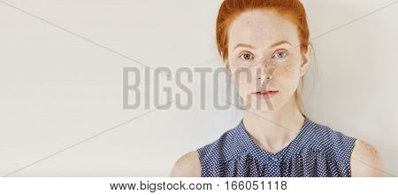 Eyes Of Different Colors: Blue And Brown. Tender Freckled Young Caucasian Female With Heterochromia