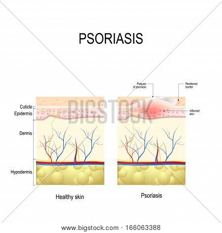 Psoriasis. Human Skin layer close up. Healthy skin and skin with the plaque psoriasis