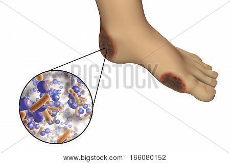 Diabetic foot infection with close-up view of bacteria isolated on white background, 3D illustration