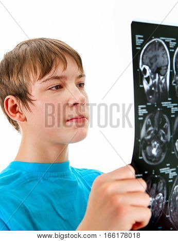 Teenager hold X-Ray scan on the White Background closeup