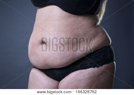 Fat female belly stretch marks closeup on gray background