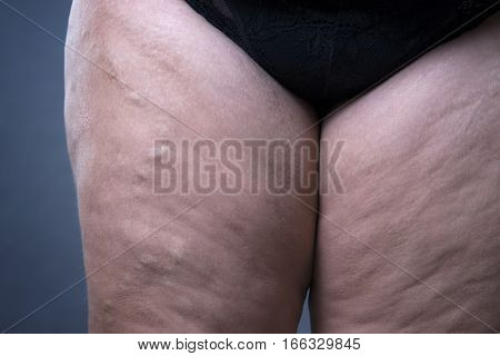 Varicose veins closeup thick female legs on a gray background