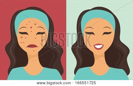 Unhappy teen girl struggling with acne flat vector
