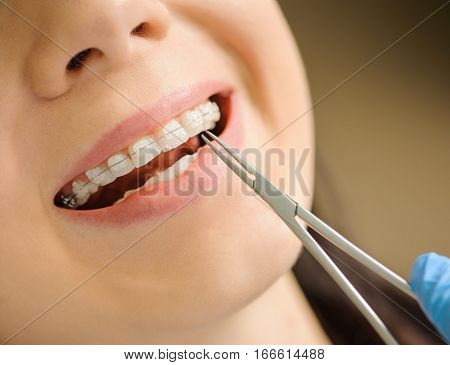 Woman With Ceramic Braces On Teeth At The Dental Office