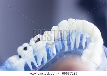 Dental Teeth Decay Plaque Model