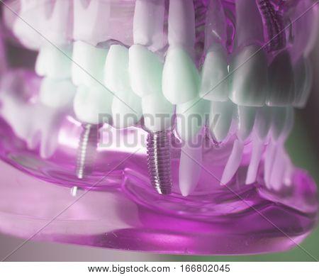 Dental Titanium Implant Screw