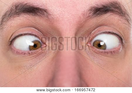 Man Is Squinting, Closeup, Concept Strabismus
