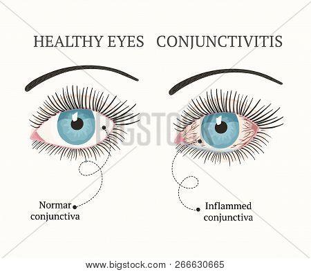 Eye Disease. Ophthalmology Flat Health Vector Illustration. Conjunctivitis Symptoms, Pink Eyes.