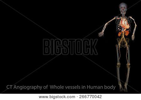 Ct Scan Imaging 3d Rendering Image Of Whole Vessels In Human Body. Medical Background Concept.