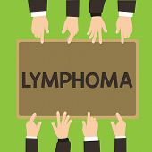 Conceptual hand writing showing Lymphoma. Business photo showcasing Cancer that begins in infection fighting cells of the immune system poster