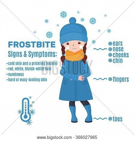 Frostbite Infographic In Cartoon Style Isolated On White Background.