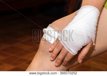 Cloth Wound Closure On Blood Blisters Reflection And Side Effect From Motorcycle Accident Lesion Inj