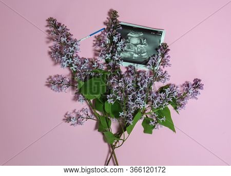 Photo Of A Pregnant Fetus At 22-23 Weeks Against A Background Of A Bouquet Of Lilacs, A Positive Pre
