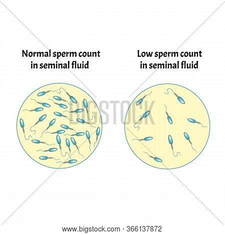 Low Sperm Count In Seminal Fluid. Low Abundance Of Sperm In The Ejaculate. Male Infertility Oligospe