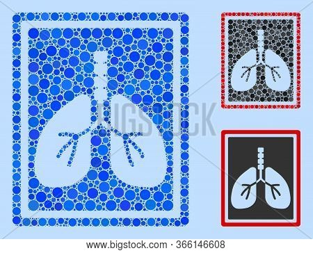 Collage Lungs X-ray Photo Icon Composed Of Spheric Elements In Random Sizes, Positions And Proportio