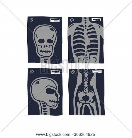 X-ray Shots. Stylized X-ray Pictures Of Human Chest, Head In Front And Side View And Coxal. Medical