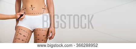 Cosmetic Plastic Surgery And Liposuction Aesthetic Procedure