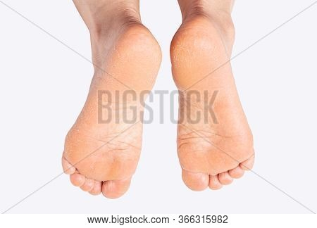 Women's Feet Are Dry And Cracked.,on A White Background