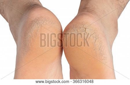 Men's Feet Are Dry And Cracked, On A White Background.