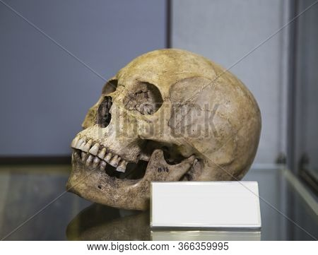 The Human Skull (homo Sapiens Linnaeus) Is Gray In Color With A Pronounced Pattern Of Bone Structure
