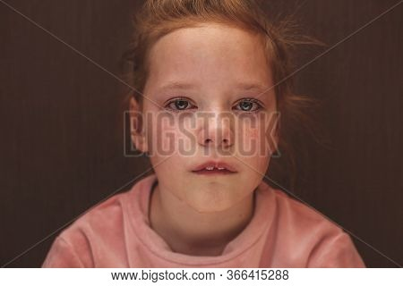Child Abuse. Sad And Lonely Girl Crying. Injured Child Posing As Victim Of Domestic Violence