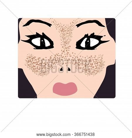Freckles On The Face. Pigmentation On The Skin. A Pigmented Spot On The Skin Of The Face. Vector Ill