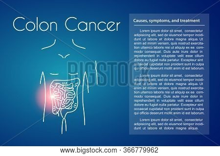 Colon Cancer Linear Icon On Blue Background. Vector Illustration Of Young Man With Red Spot On His T