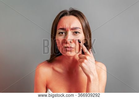 Sunburn Concept. A Young Woman Points A Finger At A Face Reddened By Sunburn. Gray Background. Copy