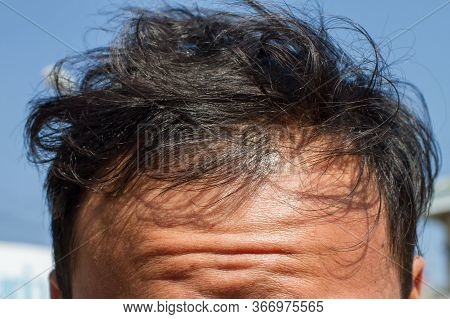 Male Head With Thinning Hair Or Alopecia, Balding. Natural Background. Hair Treatment Concepts.