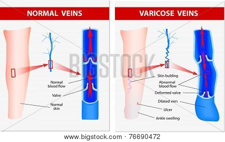 Varicose vein forms in a leg. Normal vein and varicose vein. Vector poster