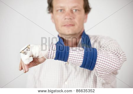 Man with fractured pinky showing pins and bandages with a sad expression.