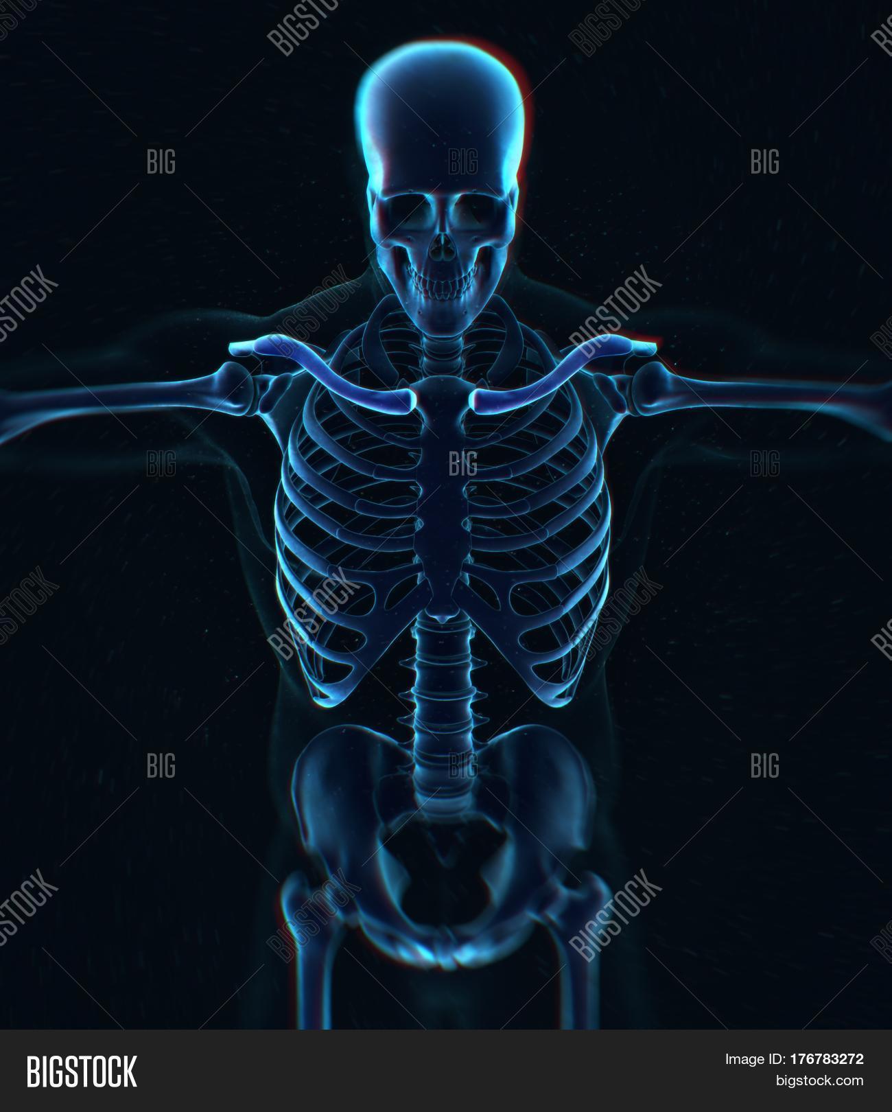 Collar Bone Xray Image Photo Free Trial Bigstock