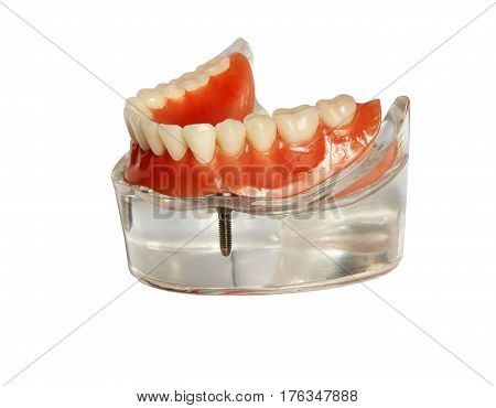 Lower jaw model and denture on implants isolated on white background