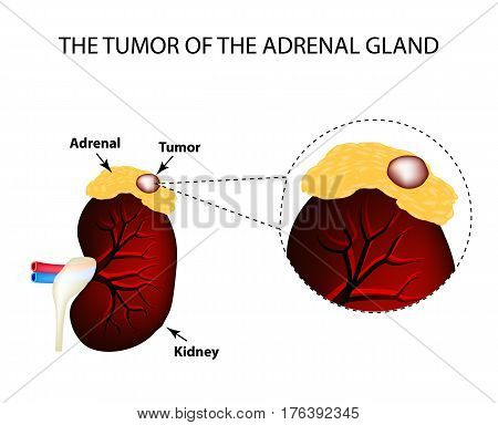 A tumor of the adrenal gland. Structure of the kidneys. Vector illustration on isolated background.