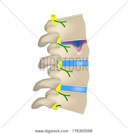 Hernia Schmorl. Intervertebral disc. Side view. Spine. Infographics. Vector illustration on isolated background