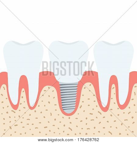 Medical denture. Human teeth, dentist implant in cartoon flat vector style.