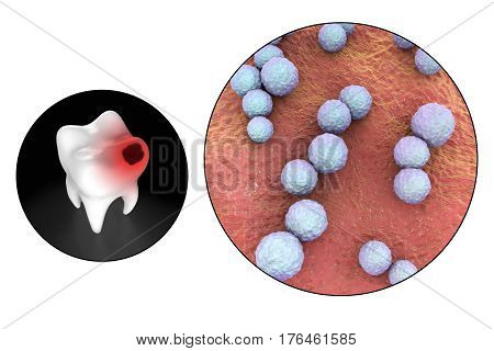 Tooth with dental caries and close-up view of microbes which cause caries Streptococcus mutans, 3D illustration