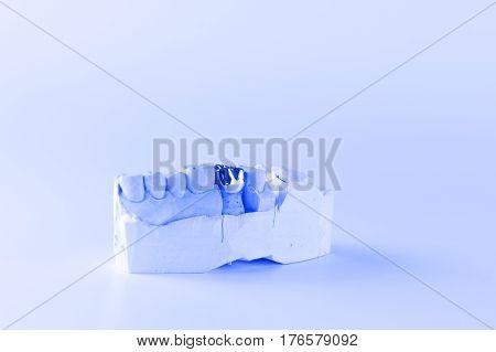 cast metal dental crown on artificial plaster model