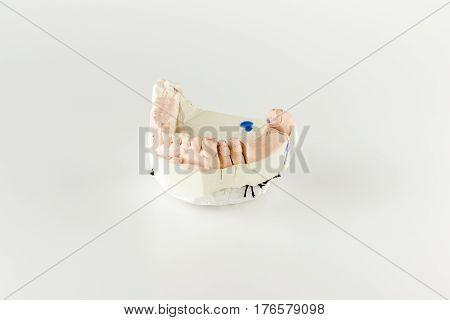 gypsum model of artificial teeth for dental technician