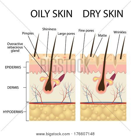 Human Skin types and conditions. Dry and oily. A diagrammatic sectional view of the skin.
