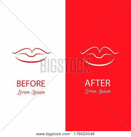Lips reshaping before and after surgery. Abstract anaplasty illustration isolated on a white and red background.Template for business card and banner