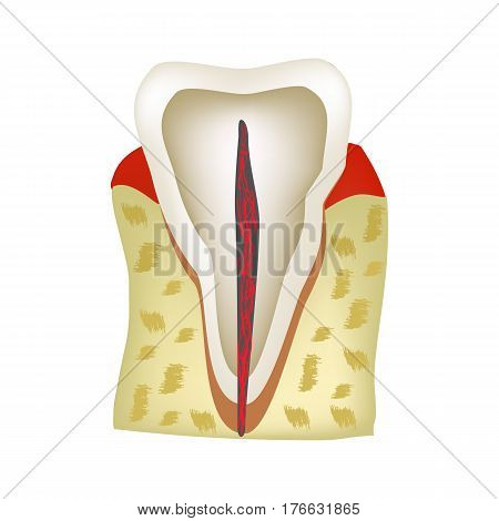 The anatomical structure of the tooth. Infographics Vector illustration on isolated background
