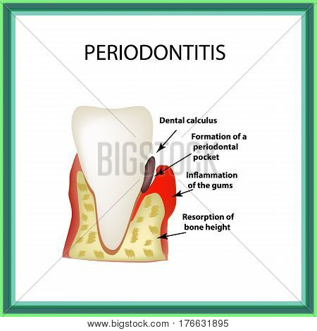 Periodontitis. dental disease. Inflammation of the gums and the tooth stone. Infographics. Vector illustration on isolated background.