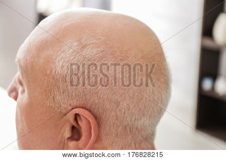 Senior bald man on blurred background, closeup